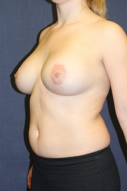 Periareolar Breast Lift West Palm Beach with Implants - Post West Palm Beach Breast Lift