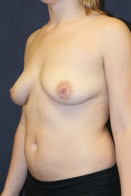Periareolar Breast Lift West Palm Beach with Implants - Pre West Palm Beach Breast Lift