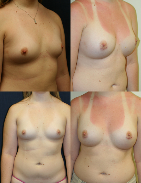 West Palm Beach Breast Implants - Post Weight Loss