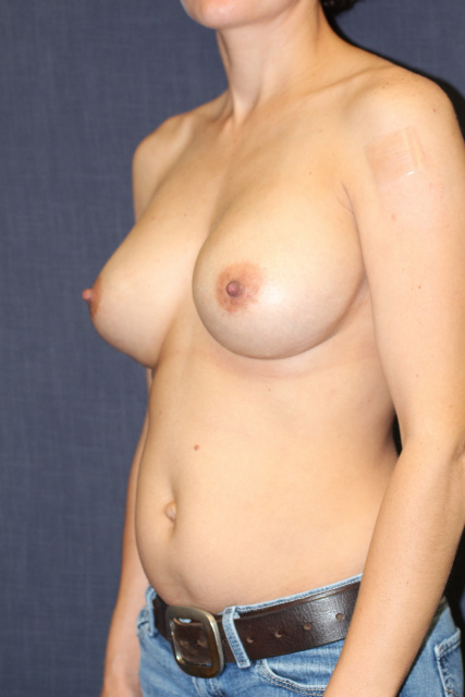 West Palm Beach Breast Implants - After Breast Augmentaton