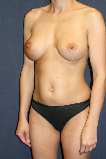 West Palm Beach Breast Implant Removal - Before West Palm Beach Explantation and Exchange