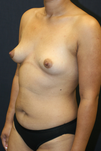Breast Implants West Palm Beach - Before Breast Augmentation