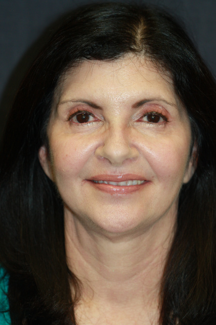 Blepharoplasty West Palm Beach - Post Eyelids Surgery