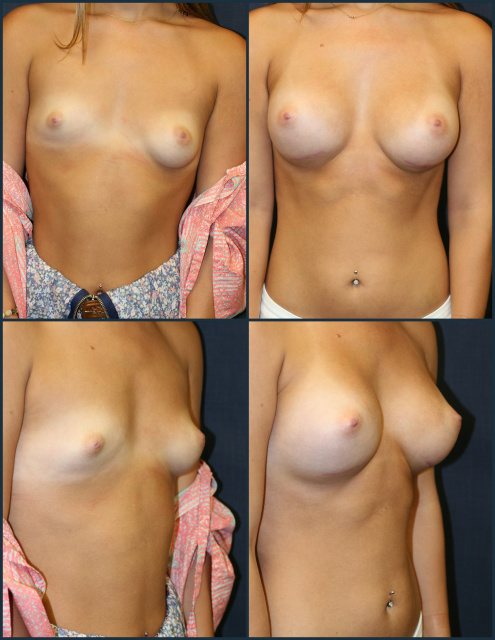 West Palm Beach Breast Implants - Breast Symmetry