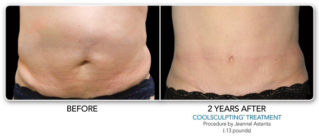 West Palm Beach Coolsculpting