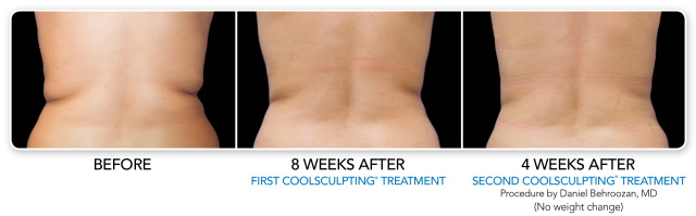 West Palm Beach Fat Reduction Nonsurgical