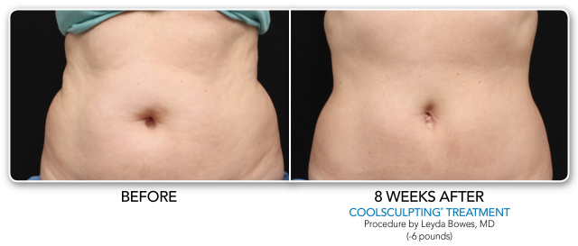 Coolsculpting West Palm Beach