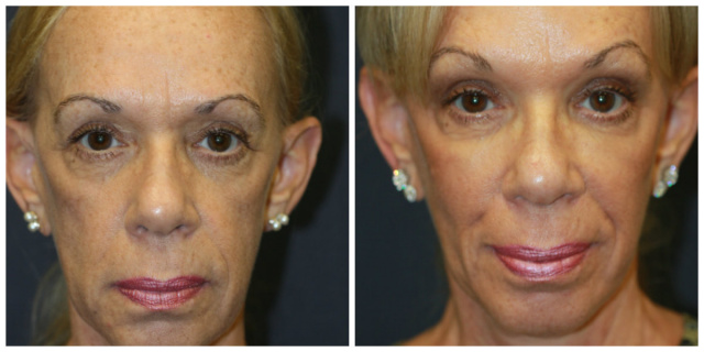 West Palm Beach Juvederm Voluma - Before and After Juvederm West Palm Beach