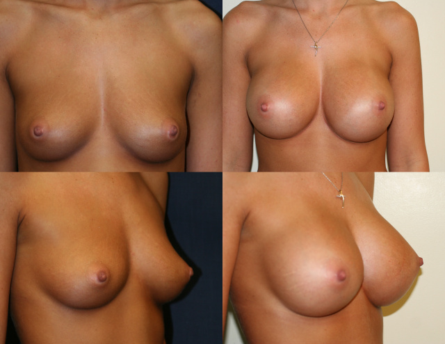 Breast Enlargement West Palm Beach