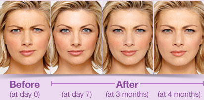 Botox West Palm Beach - Botox Duration