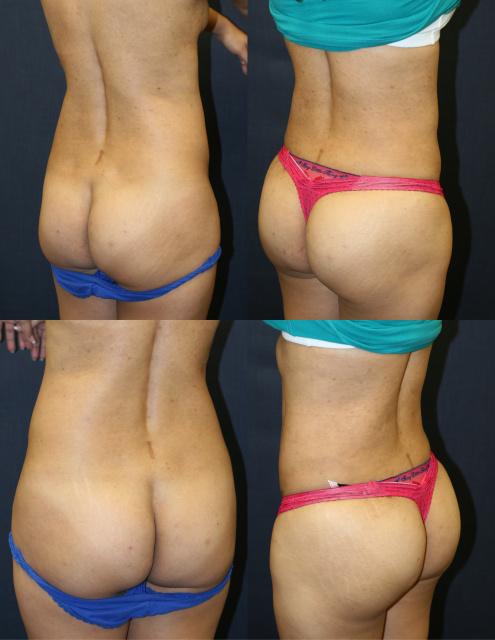 Liposuction in West Palm Beach - Before and After Body Contouring West Palm Beach