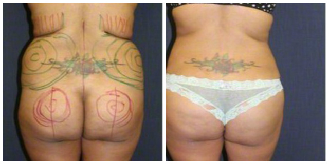 West Palm Beach Brazilian Butt Lift - Before and After Butt Augmentation West Palm Beach