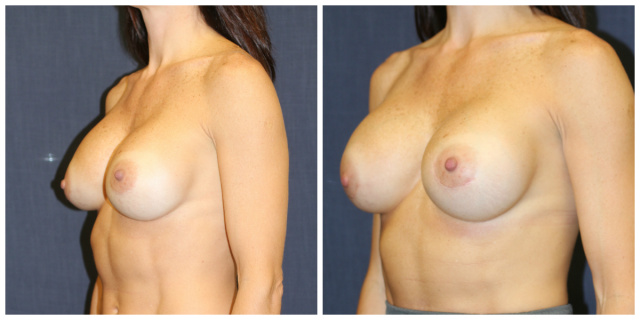 West Palm Breast Implant Revision - Before and After Breast Implant Revision West Palm Beach