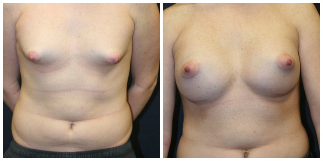Breast Augmentation West Palm Beach - Before and After Breast Implants West Palm Beach