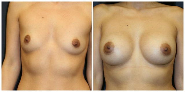 West Palm Beach Breast Asymmetry Correction - Before and After Breast Asymmetry Correction West Palm Beach