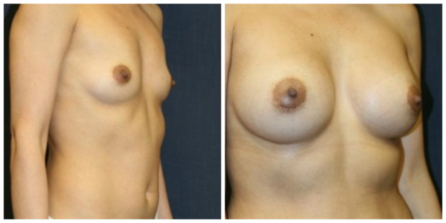 West Palm Beach Breast Asymmetry - Before and after Breast Asymmetry West Palm Beach