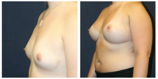 Breast Augmentation in West Palm