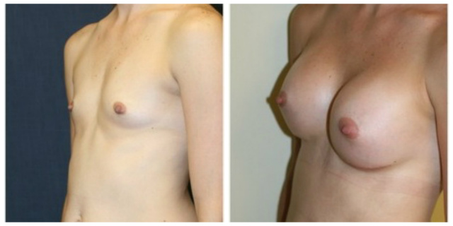 West Palm beach Breast Implants - Before and After Silicone Breast Implants West Palm Beach Narrow Chest