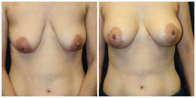 West Palm Beach Breast Augmentation - Before and After Breast Implants West Palm Beach