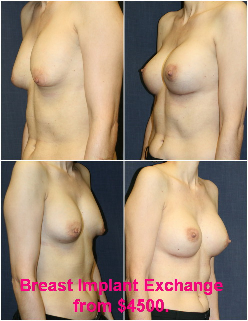 West Palm Beach Breast Implant Revision - Before and after Breast Implant Exchange West Palm Beach
