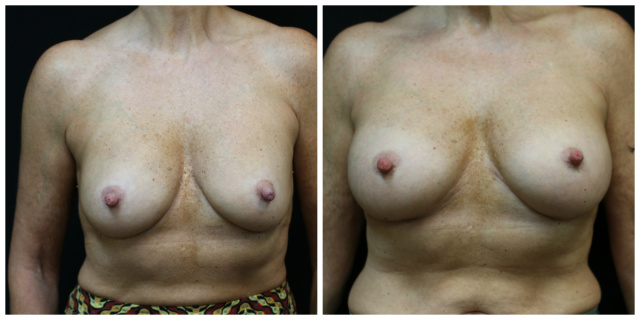 Capsular Contracture West Palm Beach Breast Implant Revision - Capsular Contracture Before and After Breast Implant Revision West Palm Beach