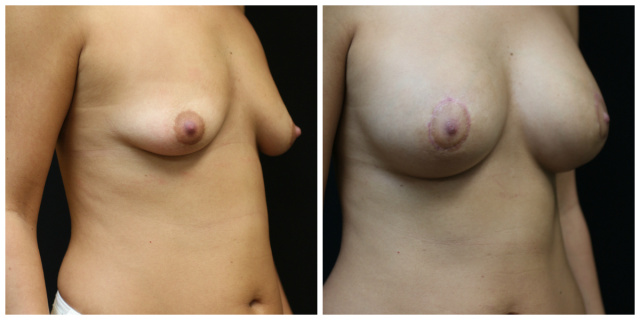 West Palm Beach Periareolar Mastopexy - Before and after Periareolar Mastopexy West Palm Beach