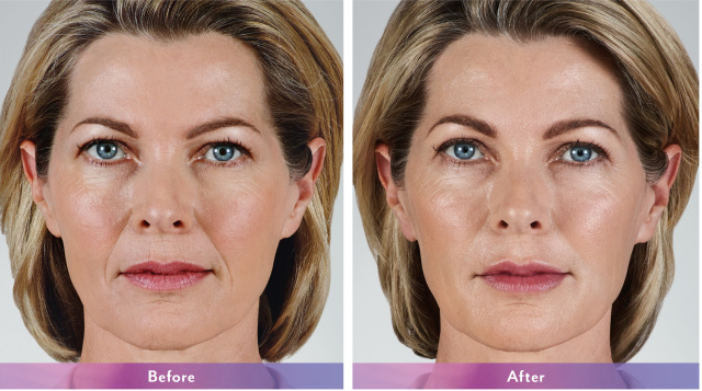 West Palm Beach Dermal Fillers - Before and After Juvederm West Palm Beach