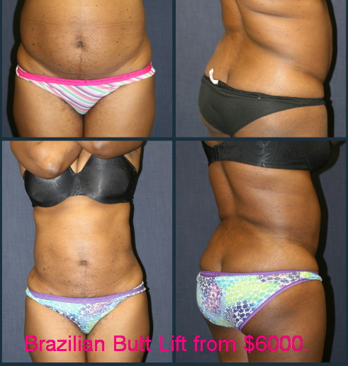 West Palm Beach Butt Lift - Before and After Brazilian Butt Lift West Palm Beach