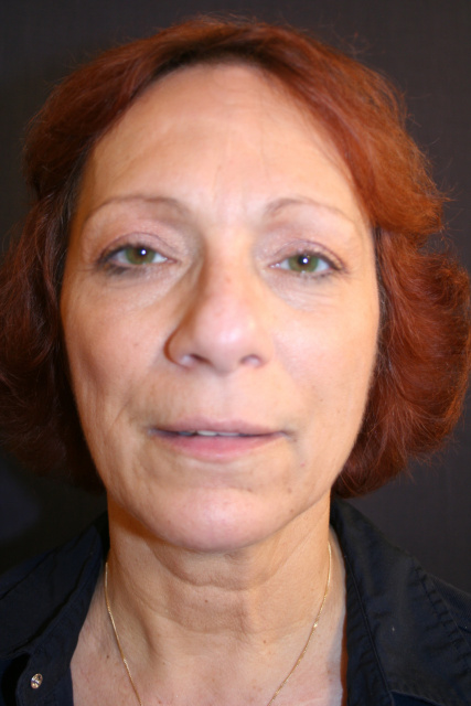 West Palm Beach Eyelids Surgery - Before Blepharoplasty West Palm Beach