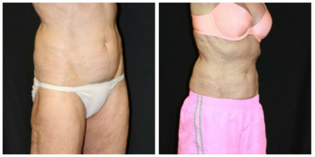West Palm Beach Coolsculpting Abdomen - Before and After West Palm Beach Nonsurgical Fat Reduction Abdomen
