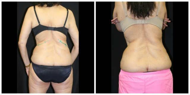 West Palm Beach Coolsculpting post liposuction - Before and After Nonsurgical Fat Reduction West Palm Beach post liposuction