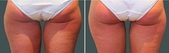 Coolsculpting West Palm Beach Inner Thighs - Before and After