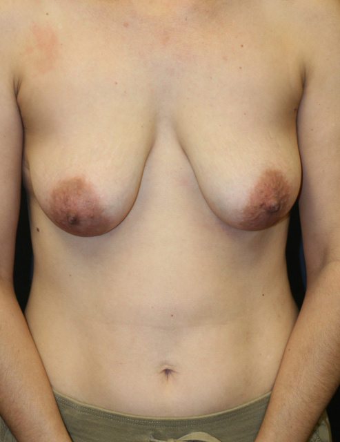 West Palm Beach Breast Implant Exchange - Pre Breast Implant Revision