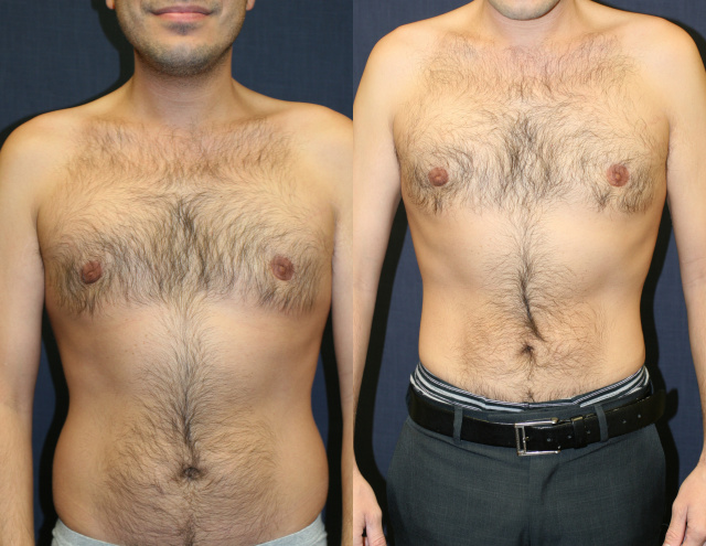 Male Liposuction West Palm Beach