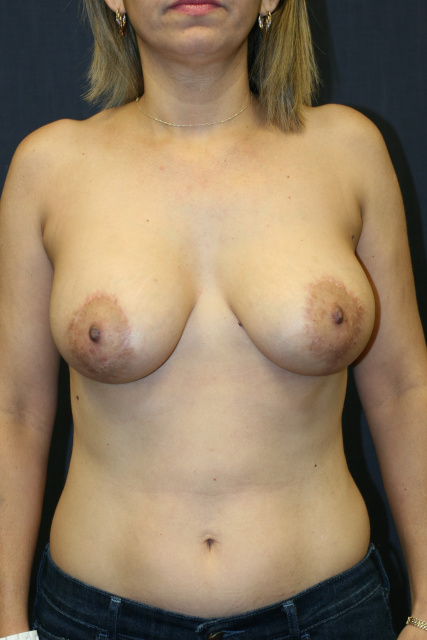 West Palm Beach Breast Implant Exchange - Post Breast Implant Revision