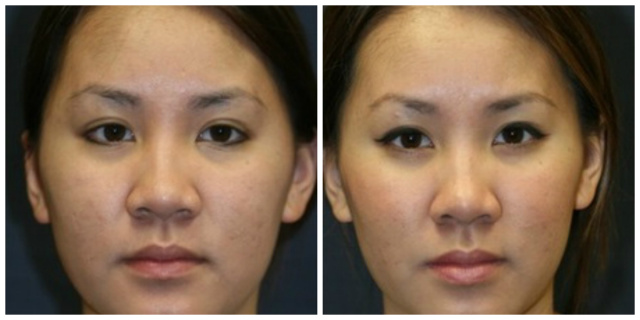 West Palm Beach Ethnic Rhinoplasty - Before and After Ethnic Rhinoplasty West Palm Beach