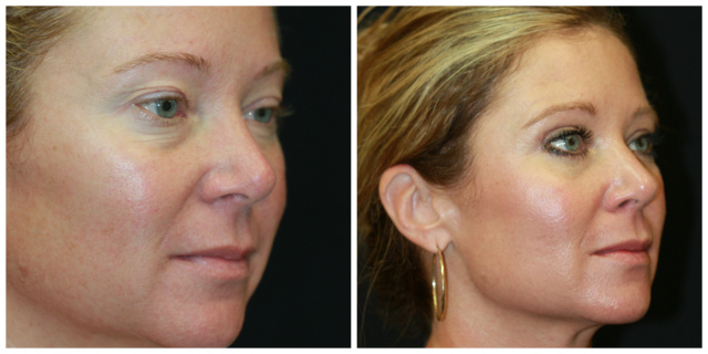 West Palm Beach Eyelids Surgery - Before and After Blepharoplasty West Palm Beach