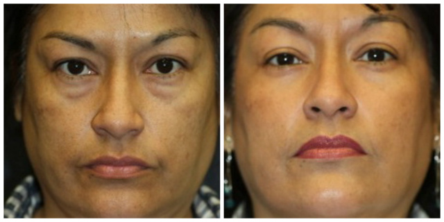 Blepharoplasty West Palm Beach - Before and After Eyelids West Palm Beach