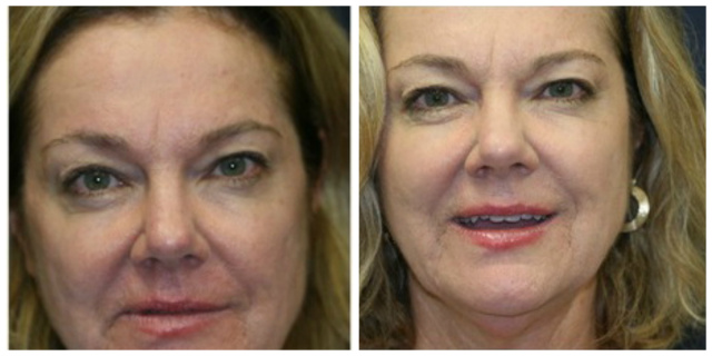 West Palm Beach Blepharoplasty -Before and After  Eyelids West Palm Beach