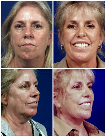 West Palm Beach Facelift