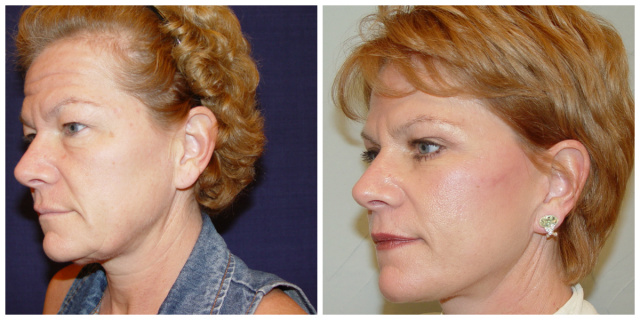 West Palm Beach Facelift - Before and After Facelift West Palm Beach