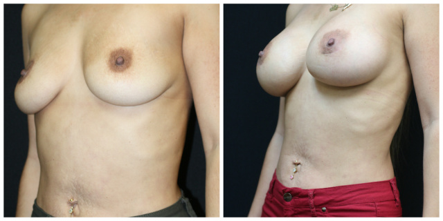 West Palm Beach Natrelle Breast Implants - Before and After Natrelle Breast Implants West Palm Beach