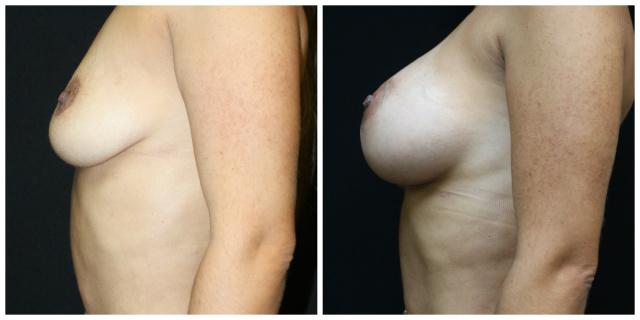 West Palm Beach Natrelle Classic Breast Implant - Before and After Classic Natrelle Breast Implant