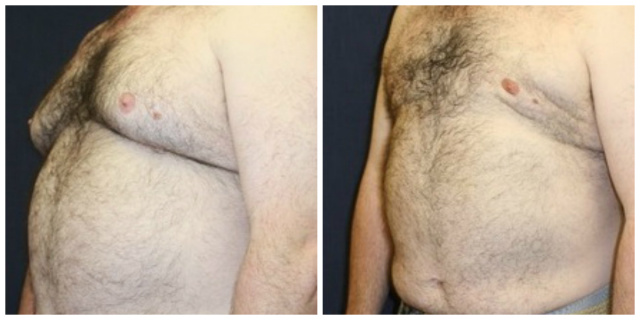 Gynecomastia West Palm Beach - Before and After Male Breast Reduction West Palm Beach