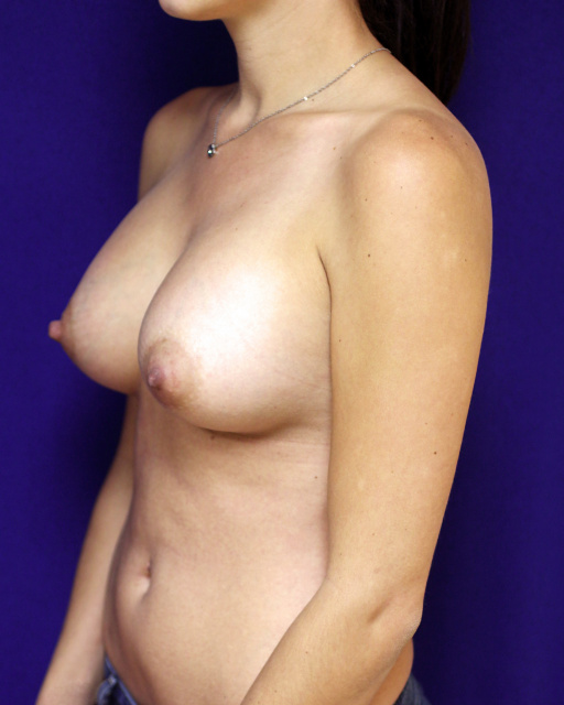 West Palm Beach Breast Augmentation - After 371 cc silicone breast implants