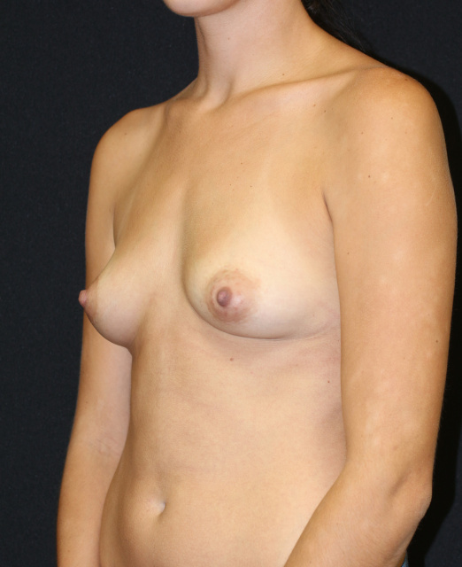 West Palm Beach Breast Augmentation - Before Breast Implants West Palm Beach