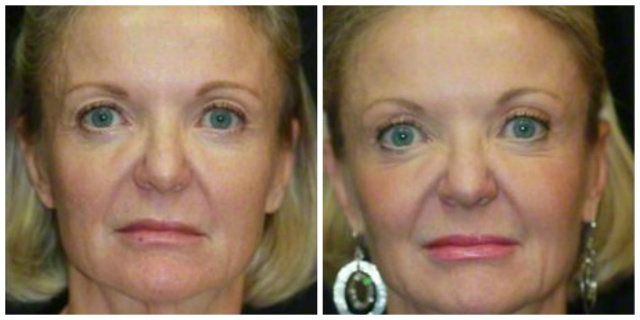 Halo Laser West Palm Beach - Before and After Halo Laser Resurfacing West Palm Beach