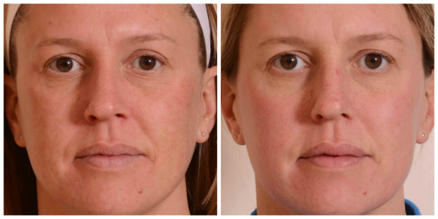 West Palm Beach Halo Laser - Before and after Halo Laser West Palm Beach