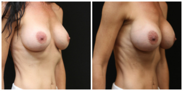 West Palm Beach Breast Implant Exchange - Before and After West Palm Beach Breast Implant Revision