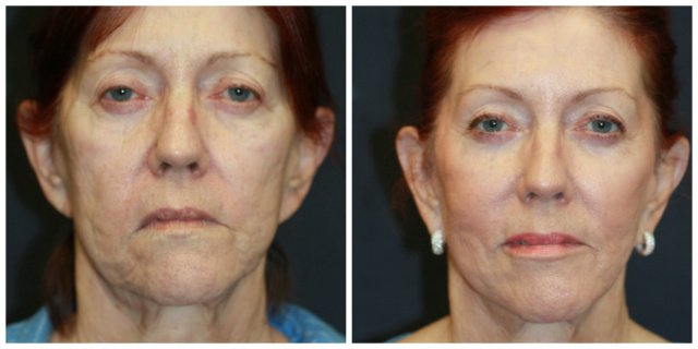 West Palm Beach Juvederm Voluma - Before and After Voluma Juvederm West Palm Beach